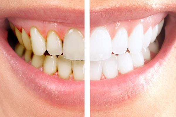 Ngừa vôi răng
